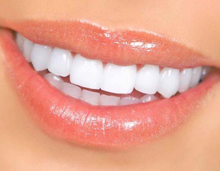 implant smile