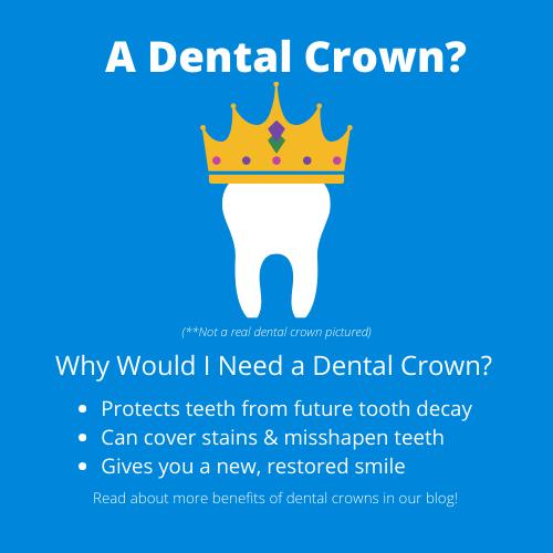 A Dental Crown Blog post image